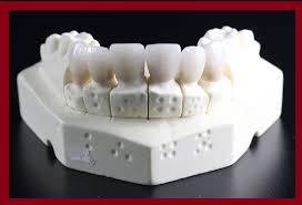 2018-2023 Tooth Replacement Market - Global Outlook
