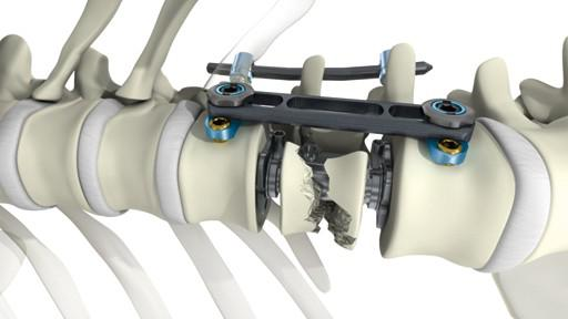 Thoracolumbar Spine Devices Market Report 2018-2023 - Beckers