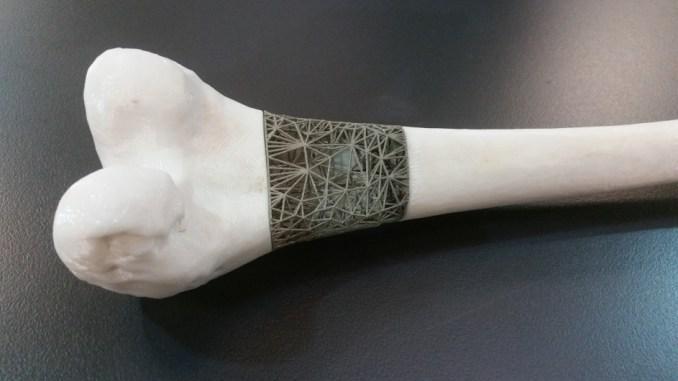 Bone Implant Market