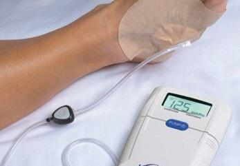 Negative Pressure Wound Therapy Devices