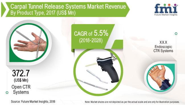 Carpal Tunnel Release Systems Market Analysis By 2028 | Arthrex,