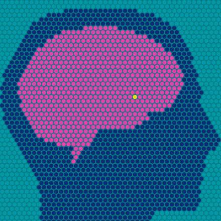 Brain Tumor Diagnosis and Therapeutics Market