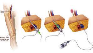 Continuous Peripheral Nerve Block Catheter Market