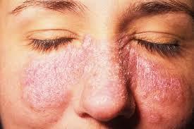 Systemic Lupus Erythematosus Treatment Market