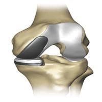 Partial Knee Replacement (PKR) Market