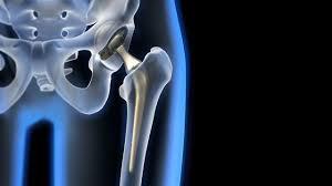 Hip Replacement Implants Market