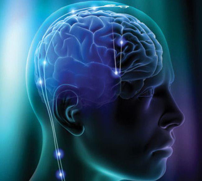 Brain Bionics