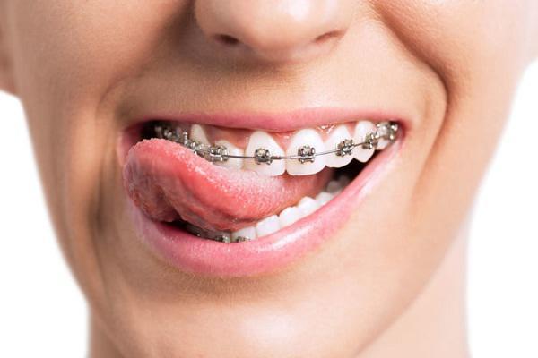 Orthodontics Market Report 2017-2023 Industry Analysis