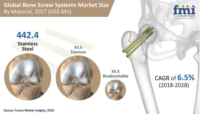 Bone Screw System Market Outlook 2018-2028 by Leading Key