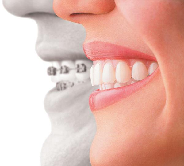 Orthodontics Market Growth Study by Advanced Technology and