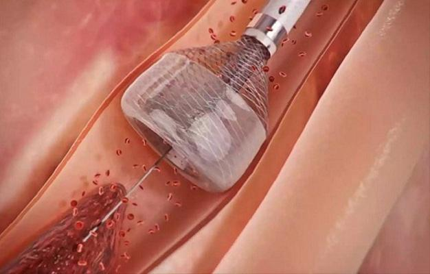 Mechanical Thrombectomy Devices Market