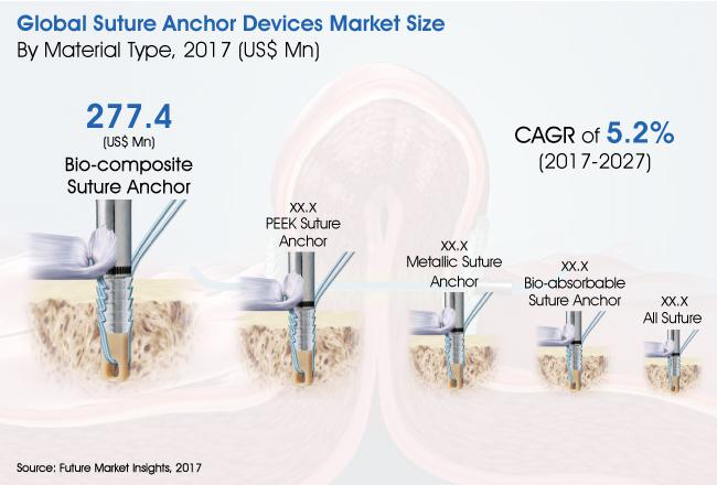 Suture Anchor Devices Market Forecast By 2027   Smith & Nephew