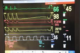 cardiac arrhythmia monitoring devices