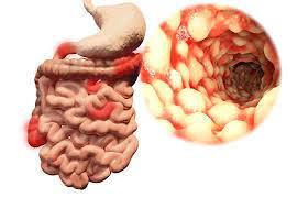 Ulcerative Colitis Market