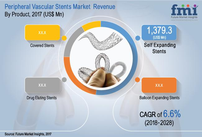 Peripheral Vascular Stents Market: North America is expected