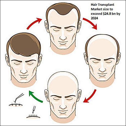 Hair Transplant Market Statistics - Industry Size, Share Report 2024