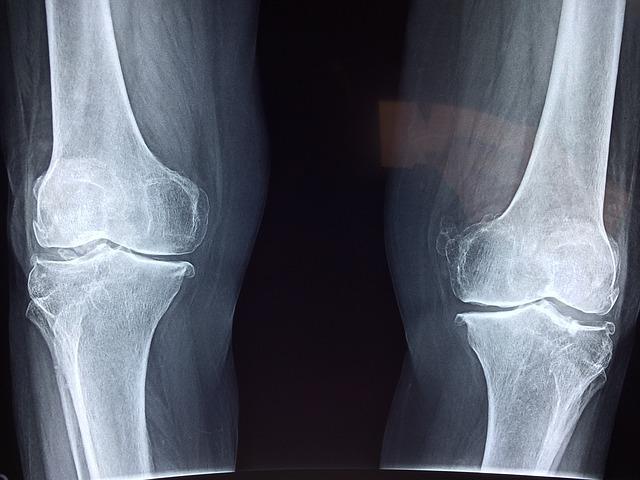 Orthopaedic Imaging Equipment Market Revenues Pegged at US$
