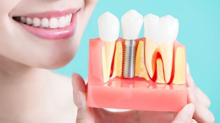 Dental Implants Market By Competitors In 2025: Osstem, Zimmer