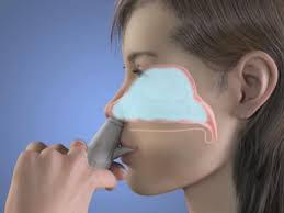 Nasal Drug Delivery Technology  Market