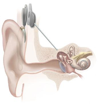 Bone Conduction Hearing Devices Market Demand, Share, Size,