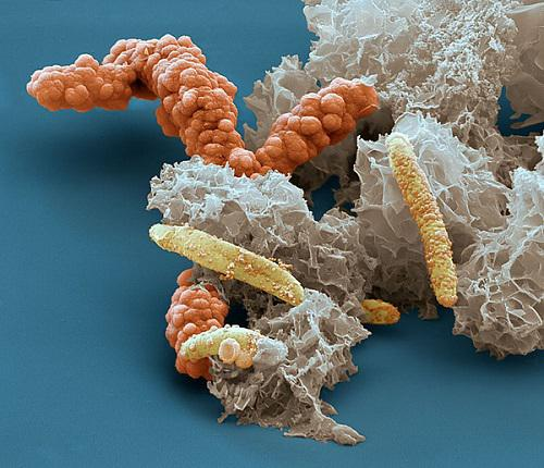 Global Microbial Lipase Market Growth Will Escalate Rapidly