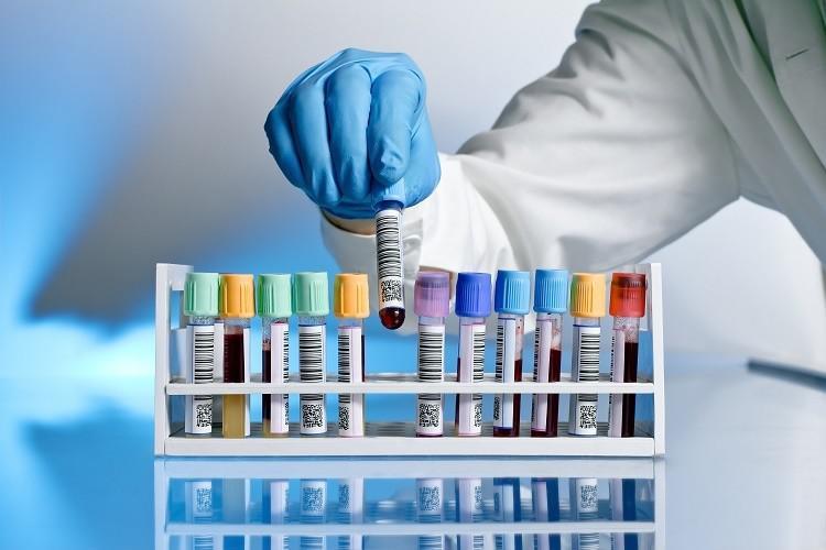 2025 Analysis on Global Biobanking Services Market