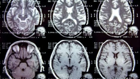 Neurological Disorder Diagnostics