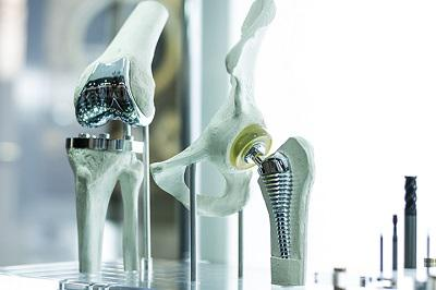 Global Bone Replacement Market Competitive Outlook 2023 |