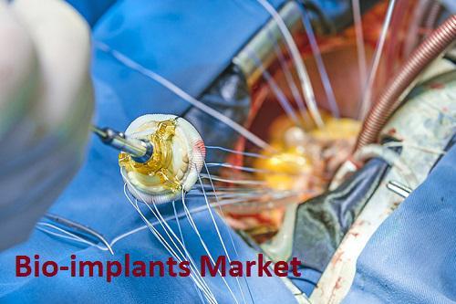 Bio-implants Market