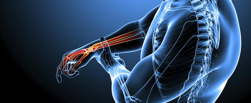High Tibial Osteotomy (HTO) Plates Market