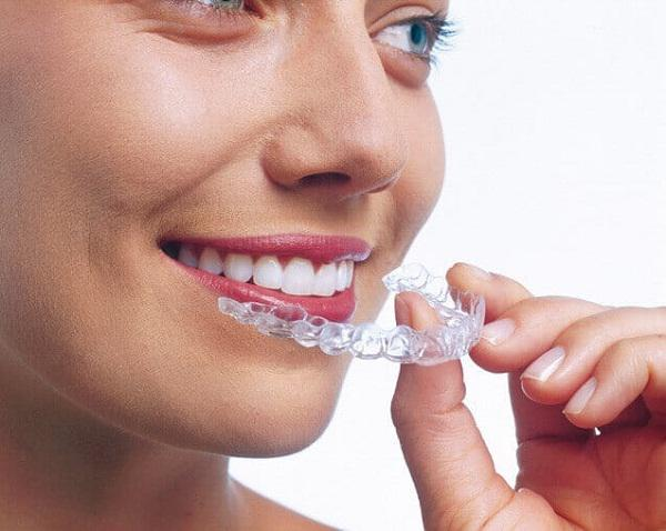 Invisible Orthodontics Market