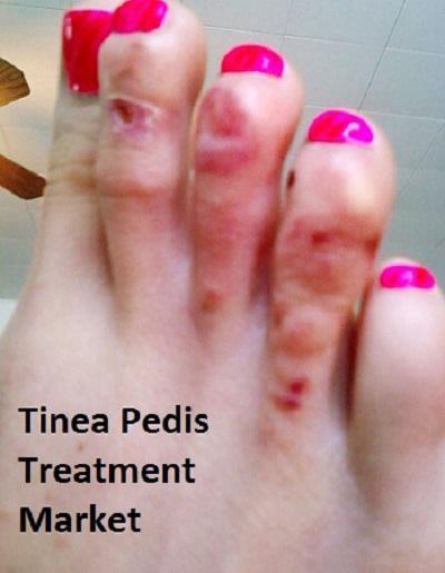 Tinea Pedis Treatment Market Estimated to Observe Significant