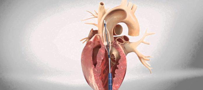 Global Transcatheter Aortic Valve Replacement/Implantation
