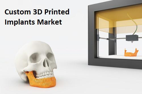 Custom 3D Printed Implants Market