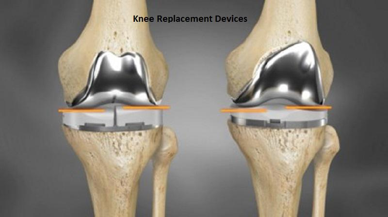 Knee Replacement Devices