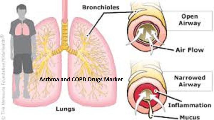 Asthma and COPD Drugs market Key Players are GlaxoSmithKline,