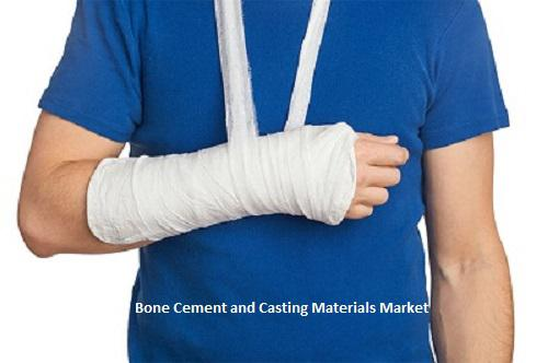 Bone Cement and Casting Materials Market to Remain Lucrative