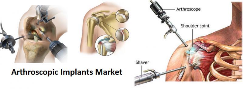 Arthroscopic Implants Market