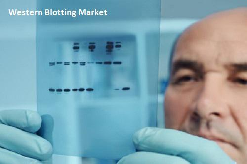 Western Blotting Market by 2025: Top Companies DANAHER,