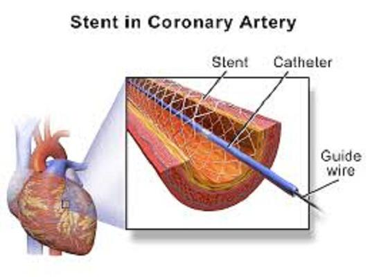 Stents Market is expected to reach $16,666 million During