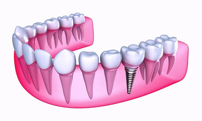 Dental Bridges Market