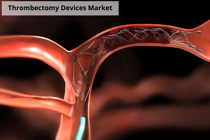 Current Technological Advancements on Thrombectomy Devices