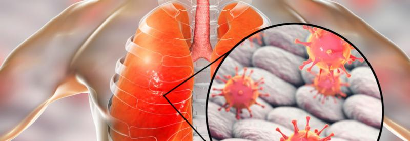 Global Pneumonia Therapeutics  Market : Technology, Applications, Growth and Status 2019 –  2025