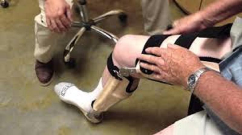 Orthopedic Prosthetics Market