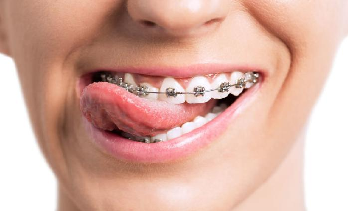 Orthodontic Brackets Market