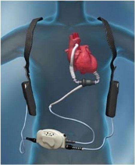 Heart Pump Device Market