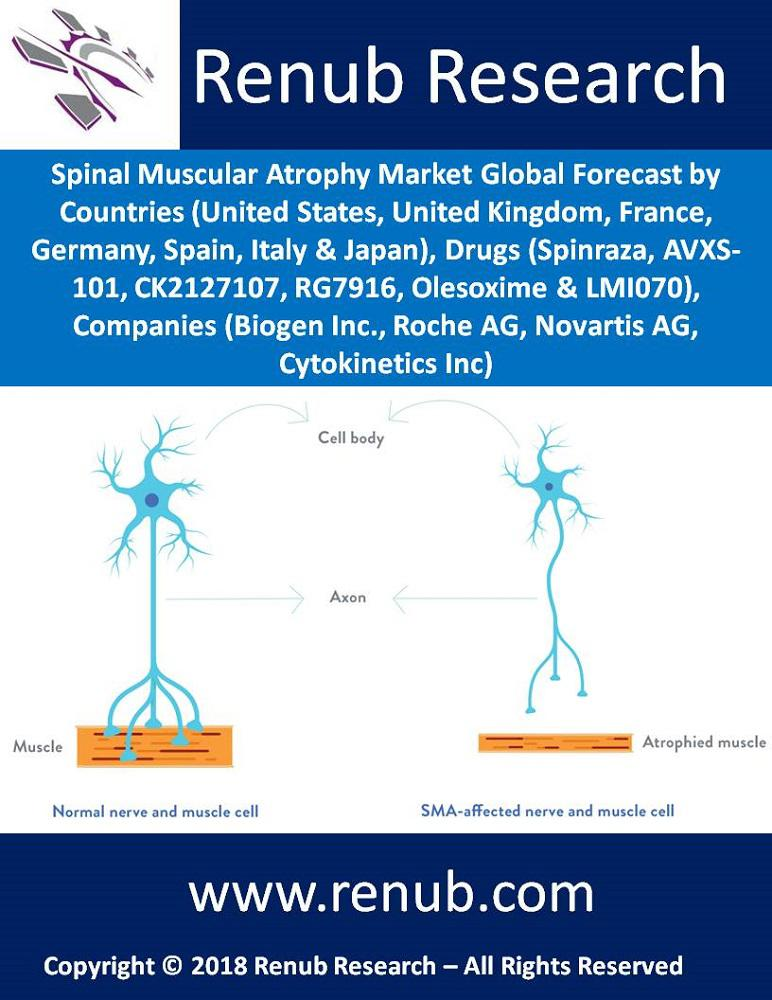 spinal-muscular-atrophy-market-countries-companies-forecast