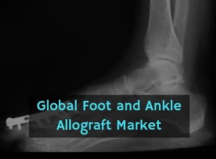 Foot and Ankle Allograft Market Expected Growth 4.7% by 2025: