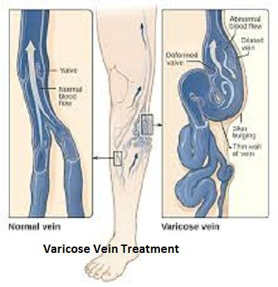 Varicose Vein Treatment Market expected to reach $ 589.06
