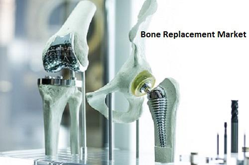 Bone Replacement Market Report Covering Trends, Market Share